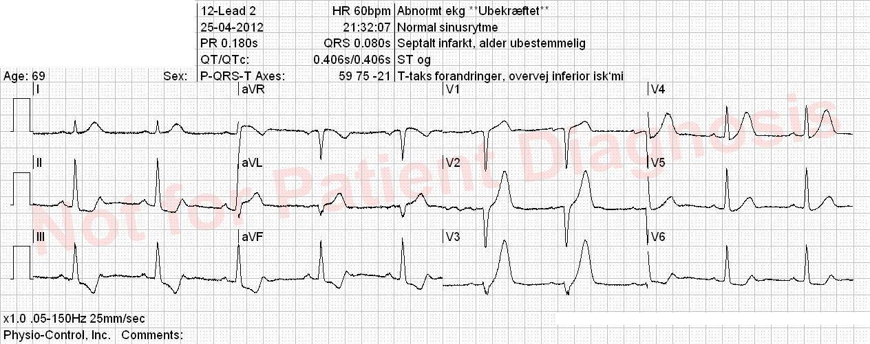 5 random spørgsmål | EKG Quiz